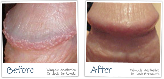 Before and After pictures Pearly Penile Papules